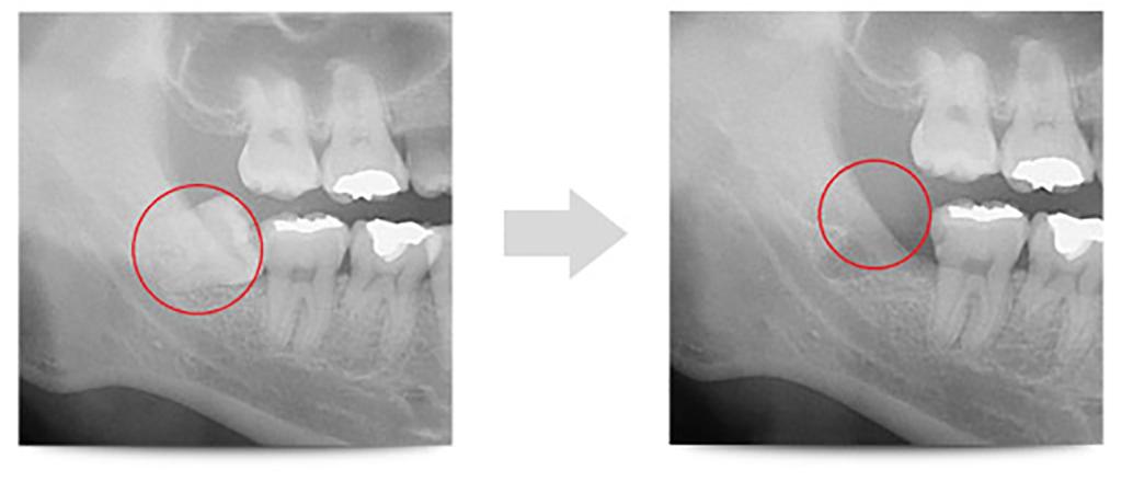 水平埋伏歯1