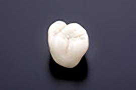 歯の特徴付け