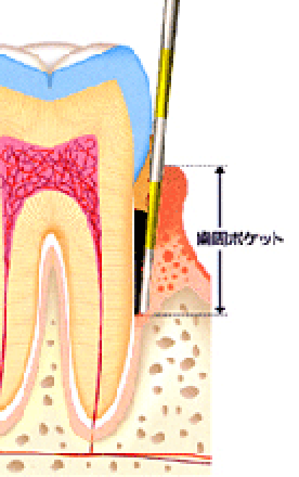 歯周ポケット
