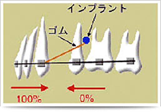 短期治療 図